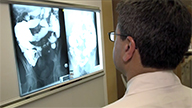 Inflammatory bowel disease: Cutting through a tough problem