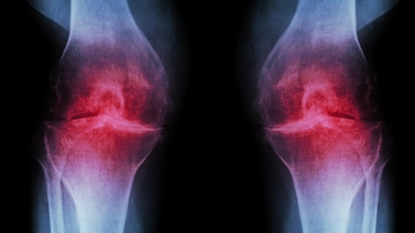 image of arthritic knee joints