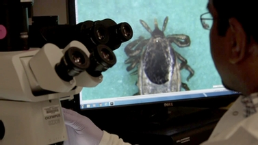 scientist uses a microscope to examine a tick
